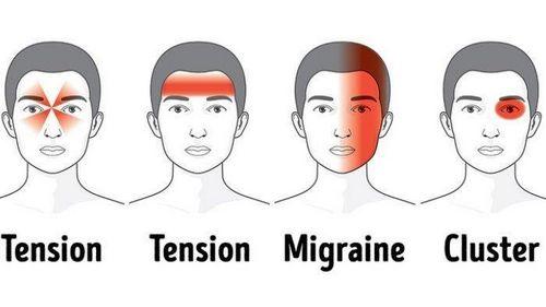 Gejala Sakit Kepala Migrain dan Cara Mengidentifikasi dan Mengobatinya terutama jika kita mengalaminya secara