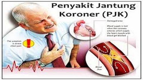 Memahami Penyakit Arteri Koroner minum obat dapat