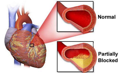 Memahami Penyakit Arteri Koroner untuk pemeriksaan menyeluruh